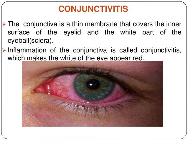 conjunctivitis-2-638.jpg
