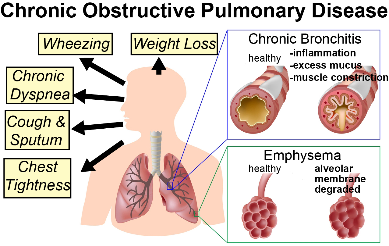 copd_bps_blog.jpg