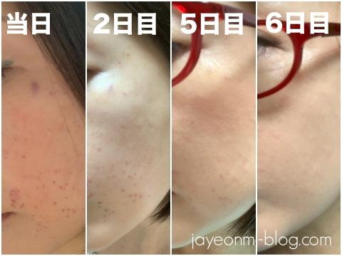 チョンダム_品クリニック_Easy Dew_韓国美容皮膚科_7