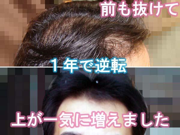 2014年の髪が増えた写真