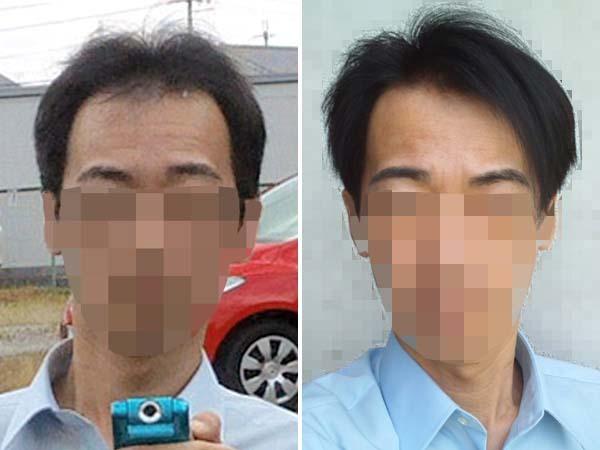 5年前の薄毛と今の髪の比較写真