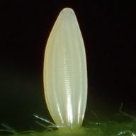 e-エゾヒメシロチョウ卵1_4h-2019-05-09mk-Tg592698